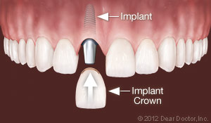 implants-replace-one-tooth